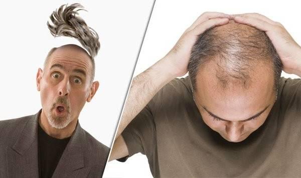 Naturel et efficace Molecule repousse cheveux Comparatif