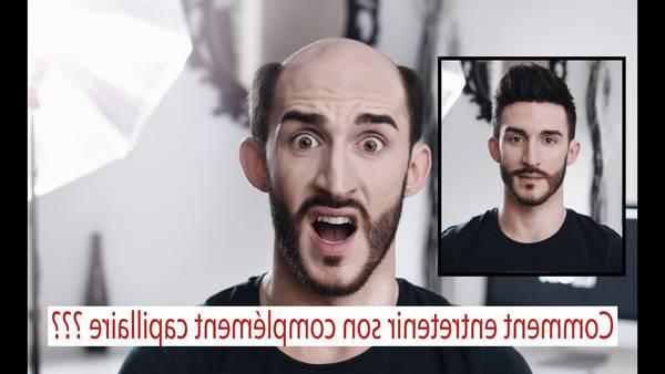 100% Efficace Perte de cheveux homme 20 ans Avis