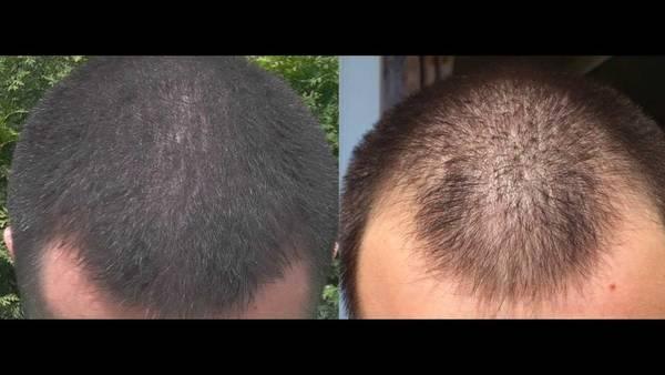 Naturel et efficace Chute de cheveux traitement efficace Comparatif