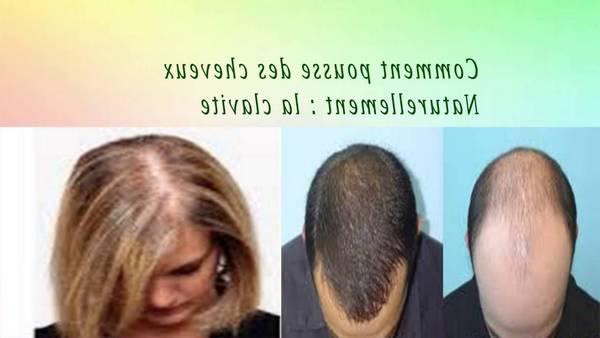 Numéro 1 Spiruline pour cheveux Naturel