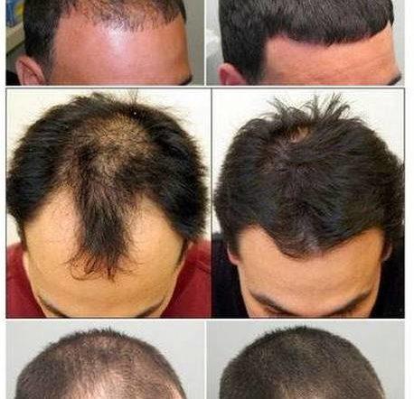 Naturel et efficace Alopécie cheveux crépus Test