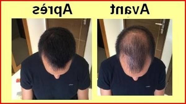 Efficacité prouvée Greffe des cheveux Avis