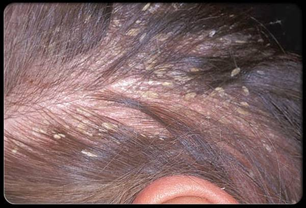 Naturel et efficace Chute de cheveux homme jeune Pas cher