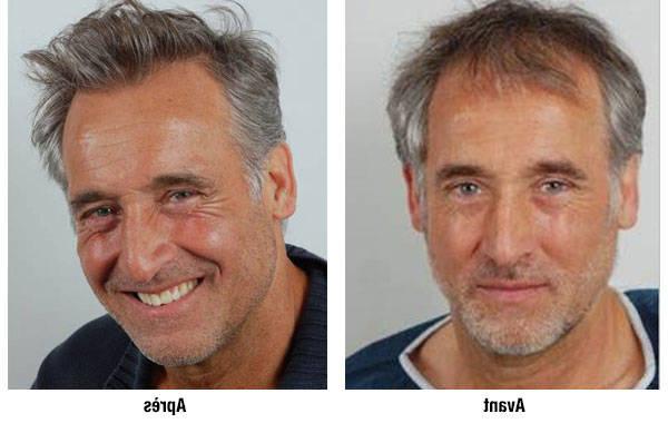 Efficacité prouvée Ortie pour chute cheveux Avis