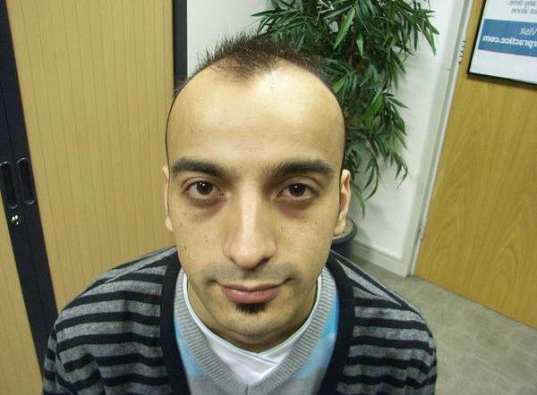 100% Efficace Perte cheveux homme 20 ans Top qualité