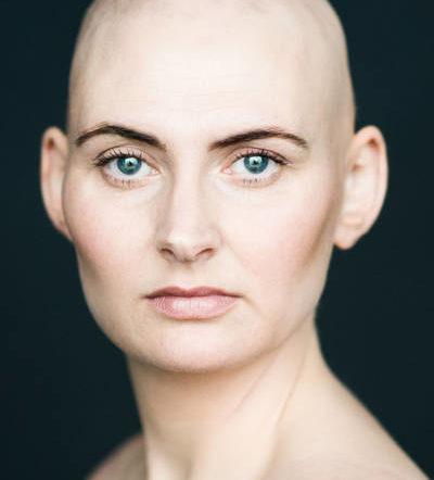 Efficacité prouvée Meilleur traitement contre la chute des cheveux Pas cher