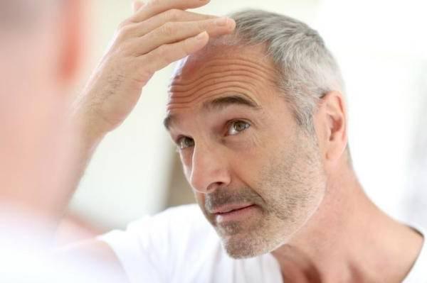 Bio et Efficace Alopécie féminine Avis