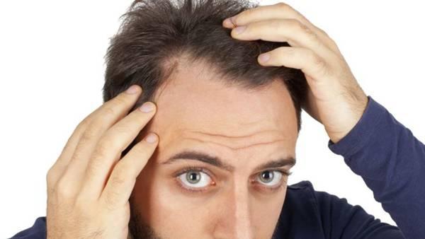 100% Efficace Perte de cheveux homme Test