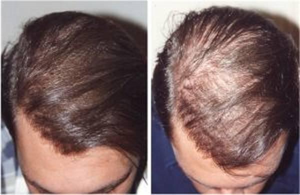 Bio et Efficace Chute de cheveux solution Test