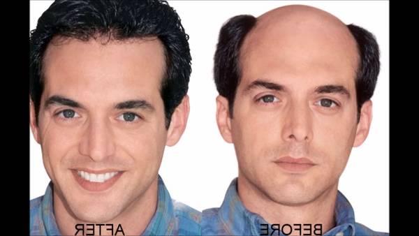 Numéro 1 5 alpha reductase chute de cheveux Test