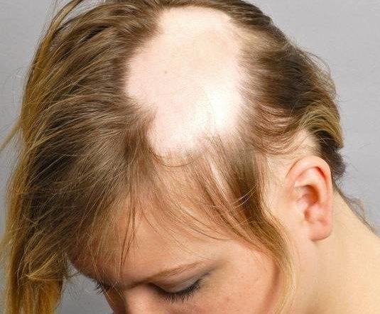 Découvrez Alopécie féminine Top qualité