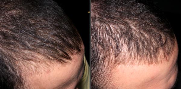 100% Efficace Implantation de cheveux Test