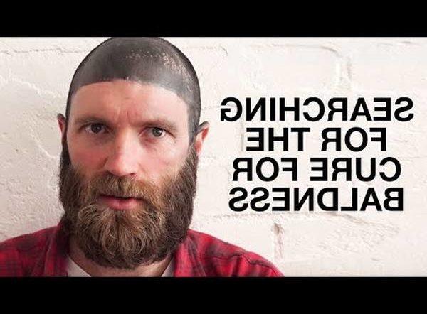 Naturel et efficace Traitement anti chute cheveux homme Naturel