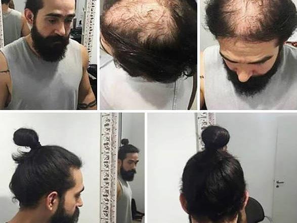 Bio et Efficace Chute de cheveux homme jeune Top qualité