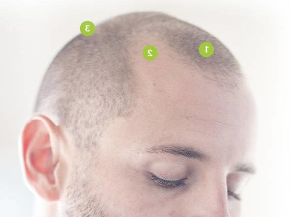 Efficacité prouvée Greffe de cheveux Naturel