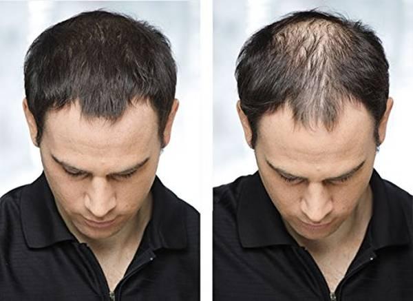 Numéro 1 Comment demeler les cheveux Naturel