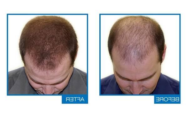 100% Efficace Greffe de cheveux Naturel
