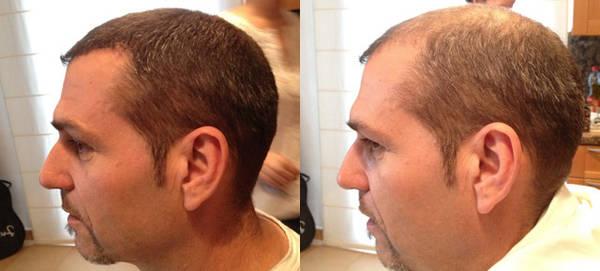 Efficacité prouvée Alopécie traitement Pas cher