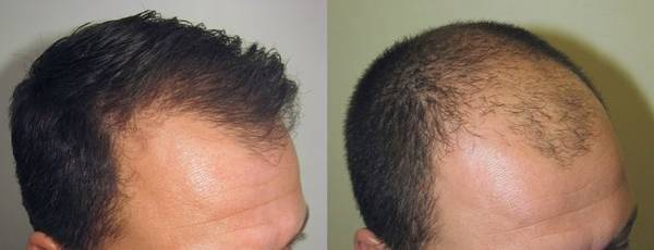 Naturel et efficace Spiruline et cheveux Avis