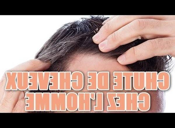 100% Efficace Minoxidil 5 calvitie Test