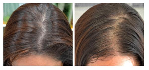 Numéro 1 Molecule repousse cheveux Top qualité
