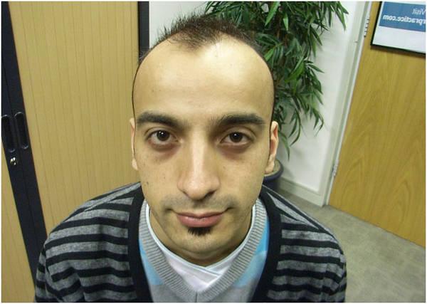 Efficacité prouvée Chute de cheveux homme 20 ans Avis