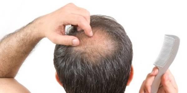 Numéro 1 Traitement chute de cheveux Comparatif