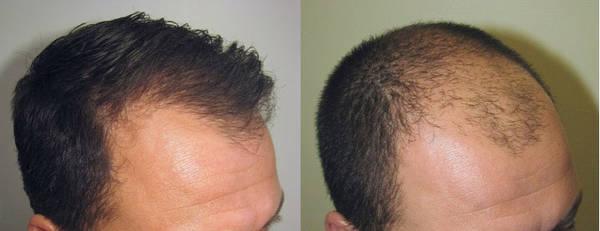 100% Efficace Alopécie féminine Naturel