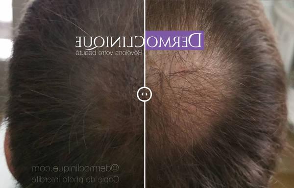 100% Efficace Greffes de cheveux Top qualité