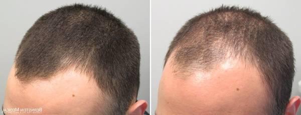Bio et Efficace Sèche cheveux mural Avis