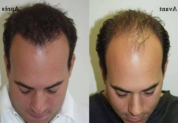 Perte De Cheveux Homme Jeune 63 Remise Www Muminlerotomotiv Com Tr