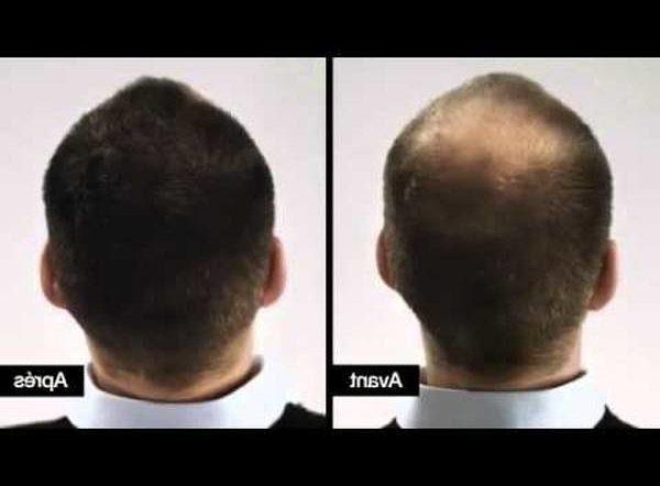 Découvrez Minoxidil chute de cheveux femme Naturel