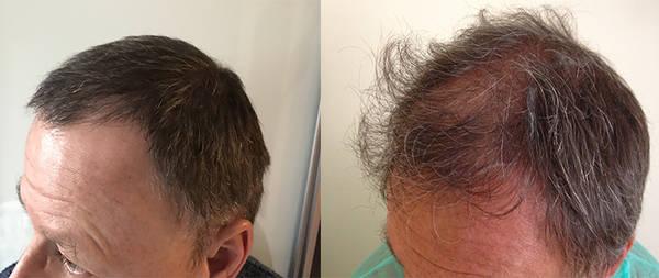 Bio et Efficace Traitement repousse cheveux Comparatif