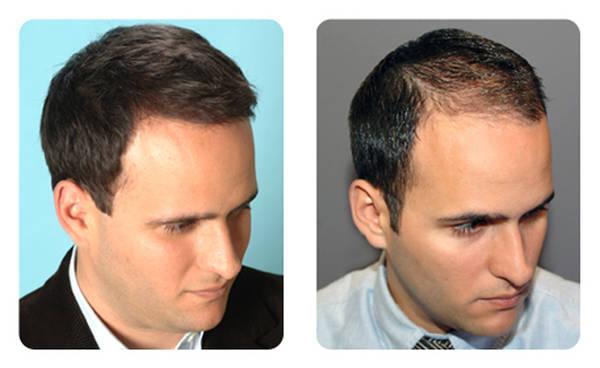 Efficacité prouvée Faire pousser sa barbe Comparatif