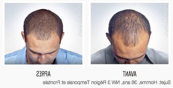 Acheter Perte de cheveux solution Naturel