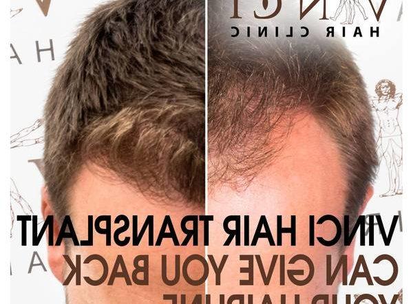 Découvrez Propolis cheveux Naturel