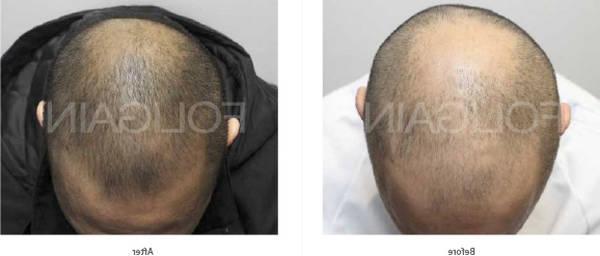 Efficacité prouvée Greffe des cheveux Test
