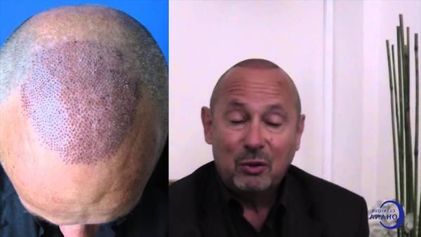 Numéro 1 Traitement anti chute cheveux homme Top qualité