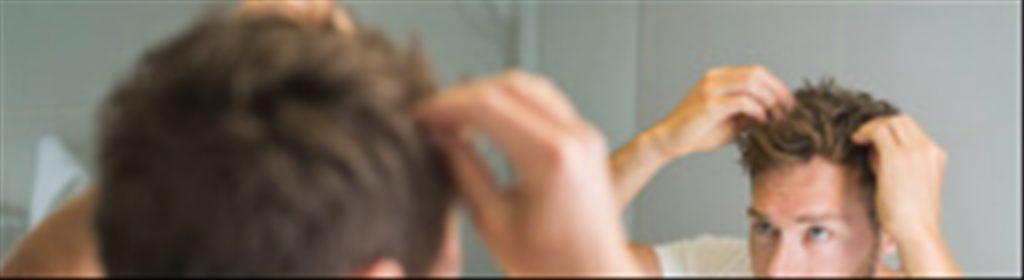 Causes de la chute des cheveux